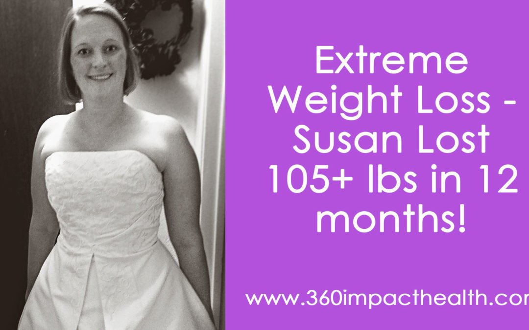 Extreme Weight Loss – She Lost Over 105 Lbs!