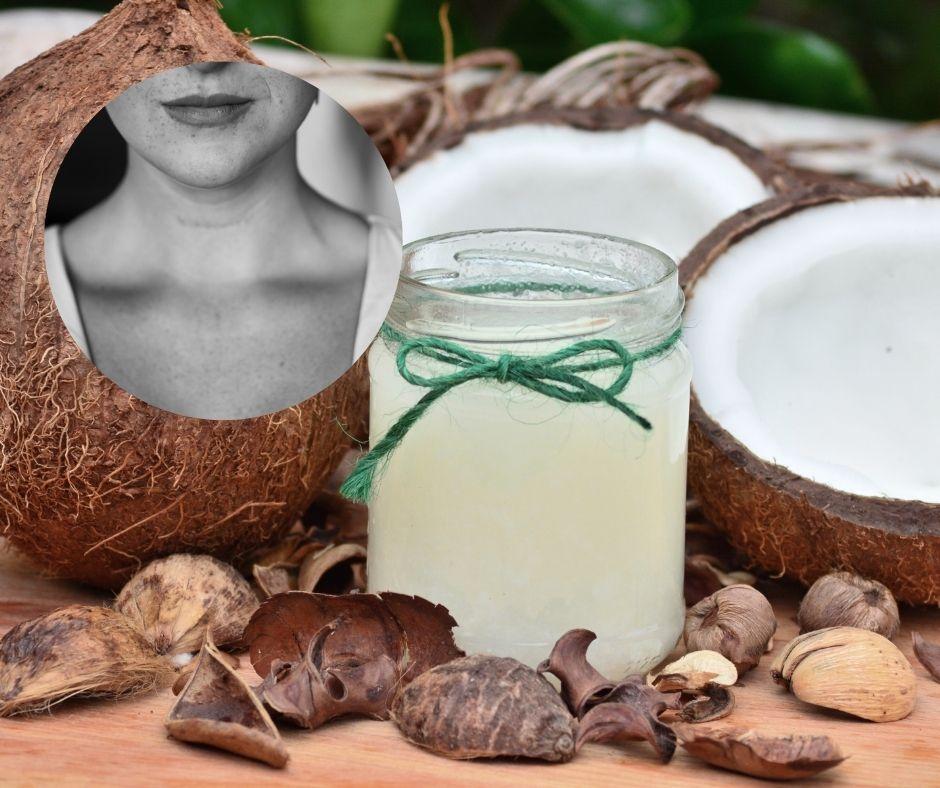 coconut oil hypothyroidism